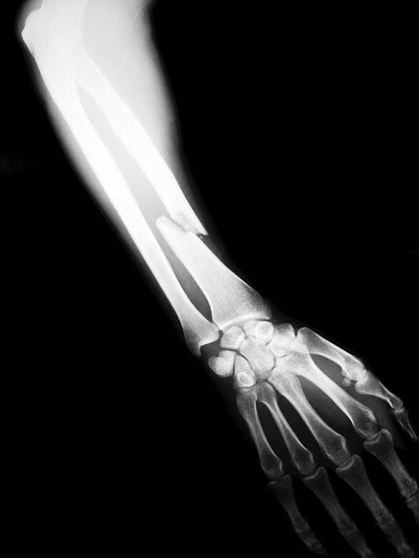 Strontium: The Forgotten Mineral for Strong Bones